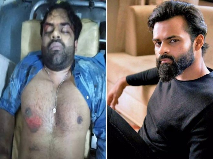 Latest health bulletin about Sai Dharam Tej from Apollo Management